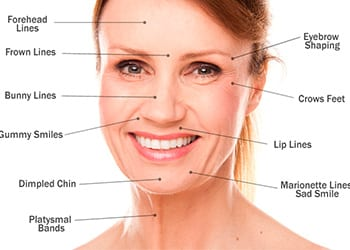 Botox Injectables